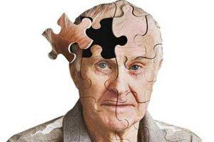 آلزایمر؛ سیر در گذشته های دور